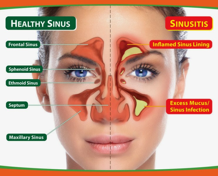 Acute & Chronic Sinusitis Specialty  Homeopathy Treatment Hospital in Velachery, Chennai, Tamilnadu,