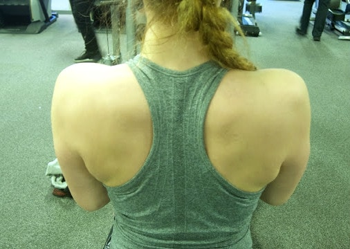 Woman's Back