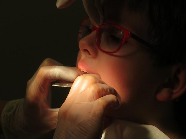 Fatalny stan zębów polskich dzieci. Jak pomóc im dbać o jamę ustną?