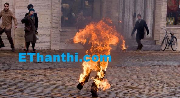 தீக்காயம் ஏற்பட்டால - விபத்தின் கொடூரம் | The burning - the cruelty of the accident !