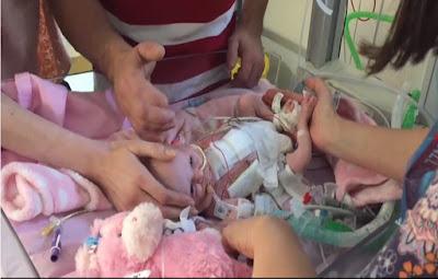 """إنقاذ """"إعجازي"""" لرضيعة قلبها خارج جسدها"""