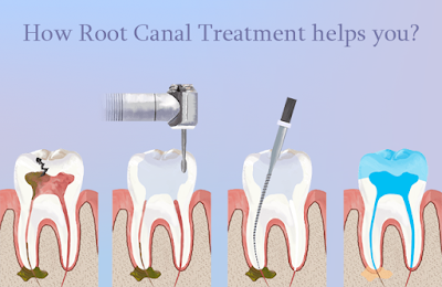 Chisel Dental Clinic Reviews