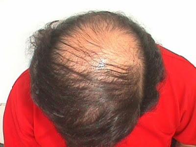 أفضل علاجات تساقط الشعر في وقت قصير