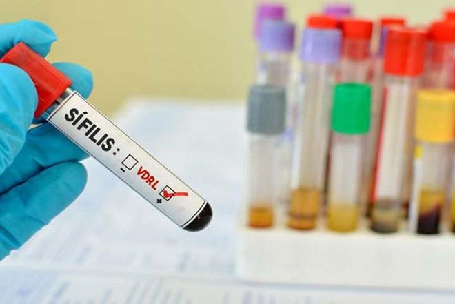 Casos de sífilis voltam a aumentar no Brasil