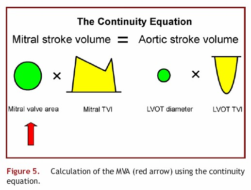 Calculation of the Mitral Valve Area using continuity equation