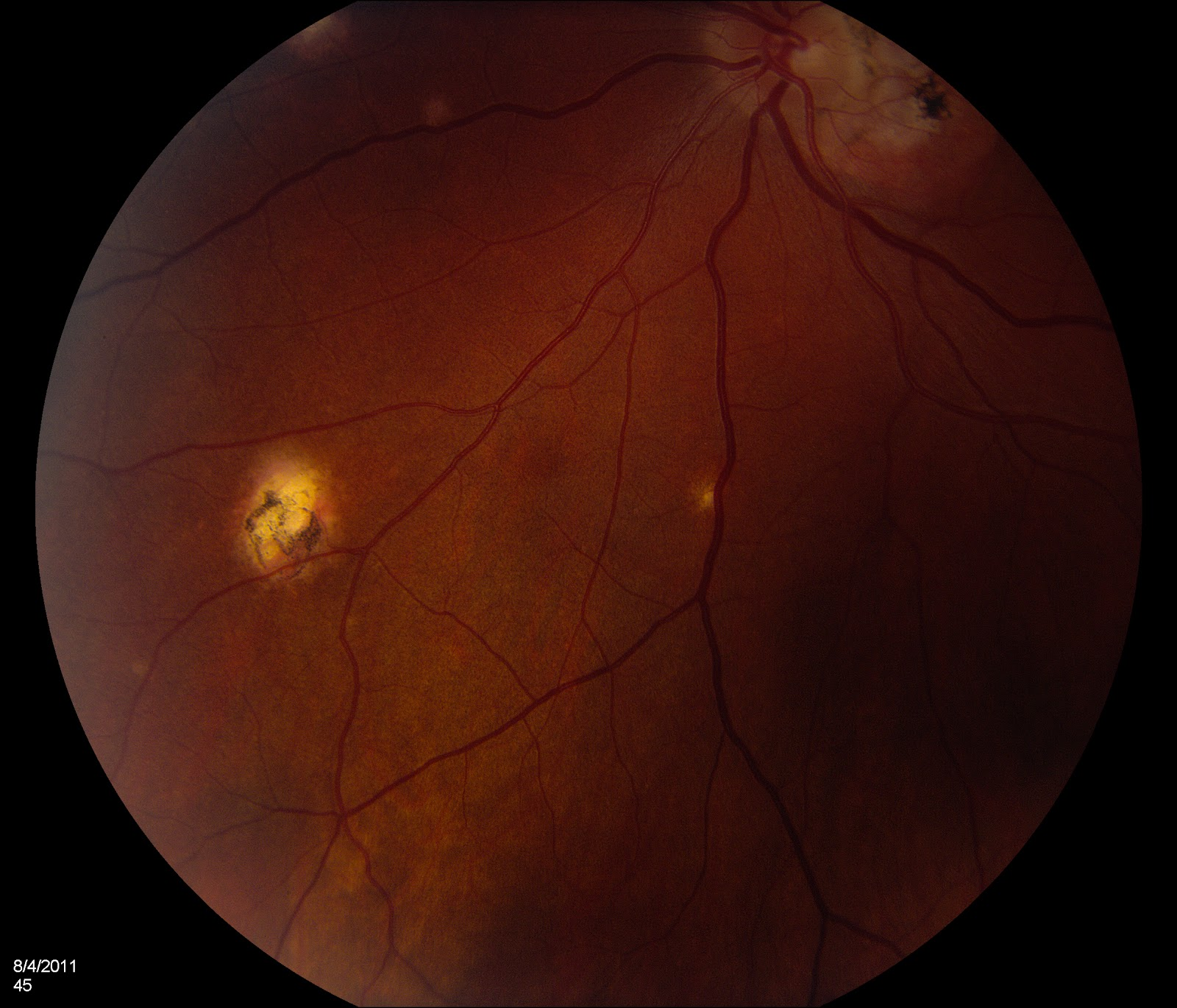 AllieCat Photography: Ocular Histoplasmosis