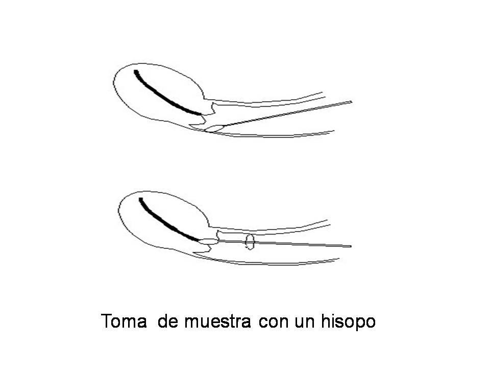 Dolor vaginal asociado con el movimiento intestinal