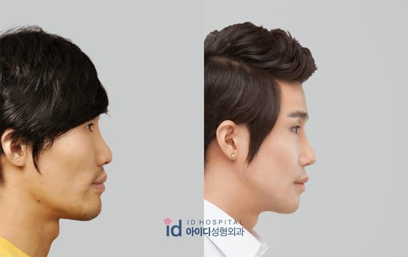 ID Hospital Korea Plastic Surgery: Masculine Male Rhinoplasty