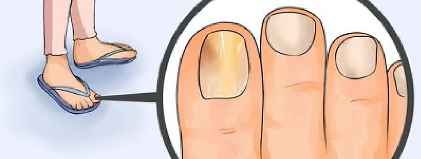 Que sanar el hongo plisado