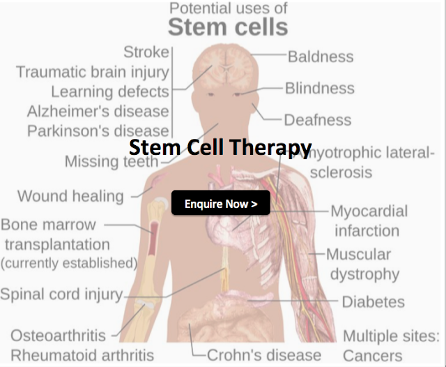 stem cell therapy malaysia