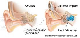 Schematic of cochlear implants fixed