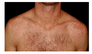 The patient's neck, shoulders, and chest have mono rash, mono rash images