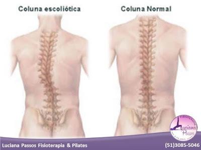 Tratamento da coluna vertebral