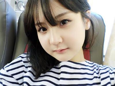 2 bulan sesudah reduksi rahang persegi & operasi dua rahang Wonjin