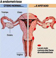 principais diferenças entre adenomiose e endometriose