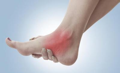 Các dạng chấn thương như bong gân sử dụng Voltaren dạng gel rất hiệu quả