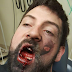 Omg! Man's face shattered after e-cigarette exploded in his mouth