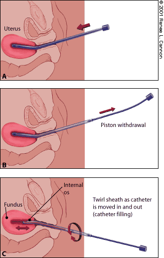 Pipelle Biopsy from Uterus