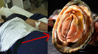 RIDICULOUS! Man Accidentally Slices His Manhood after Trying to Make Love to an Oyster?