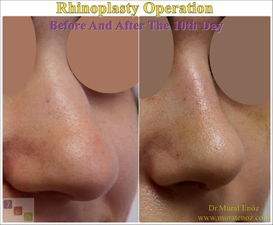 Nose job in İstanbul - Nose job in Turkey - Rhinoplasty In Istanbul - Rhinoplasty In Turkey - Nose aesthetic surgery in İstanbul - Nose aesthetic surgery in Turkey - Nose job İstanbul - Nose job Turkey - Natural looking rhinoplasty - Difficulties of the nose job surgery - Nose reshaping surgery in İstanbul - Nose reshaping surgery in Turkey - Nose aesthetic (rhinoplasty) İstanbul - How is nose aesthetic (rhinoplasty) operation is performed? - Revision rhinoplasty surgery in İstanbul