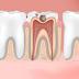 Menghilangkan Pusing & Sakit Gigi dengan Pijat Tradisional