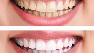 Teeth Whitening Tips in Hindi
