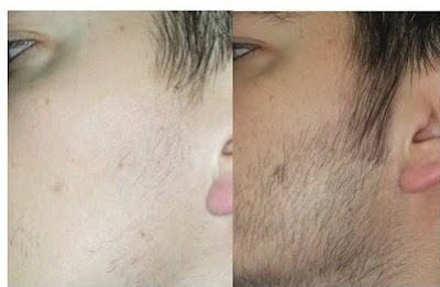 afeitarse constantemente