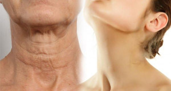 HOW TO MAKE YOUR NECK LOOK YOUNGER