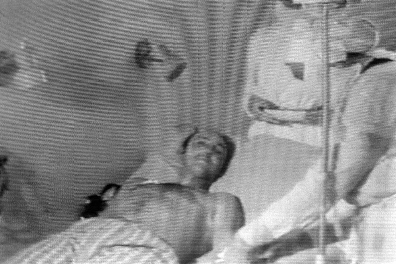 A photo from Soviet television shows a man who was injured in the blast at Chernobyl as he receives medical attention.