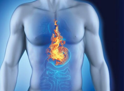 What Does Acid Reflux Feel Like