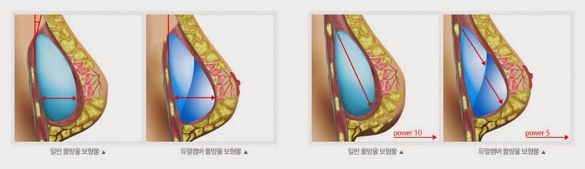 Каплевидная форма имплантатов
