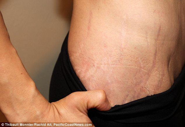 pegnancy stretch marks
