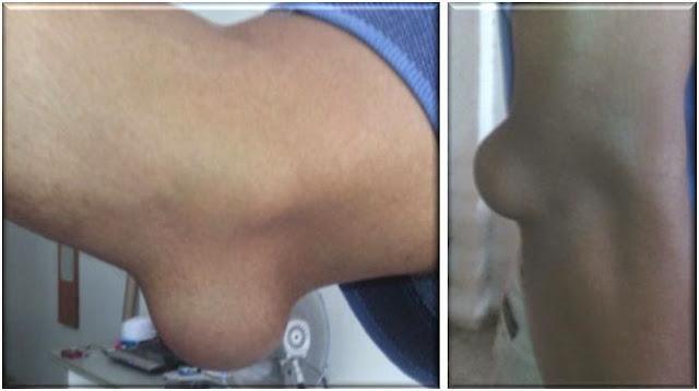 ubat-sakit-lutut-sakit-sendi-sakit-siku-jari-tangan-sakit-pinggang-arthritis-gout