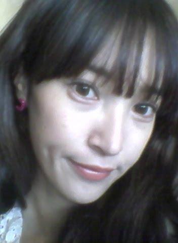 짱이뻐! - My Story Of Doing Eyelid Revision Surgery in Korea