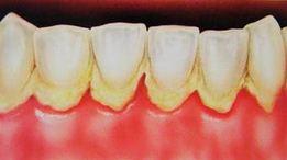 Cara Effektif Menghilangkan Karang Gigi Secara Alami