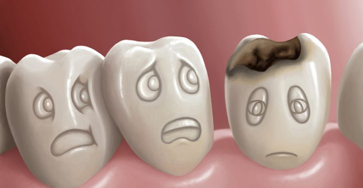 How to Relieve Tooth Decay and Cavities Naturally at Home