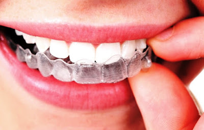 Ce este aparatul dentar Invisalign?