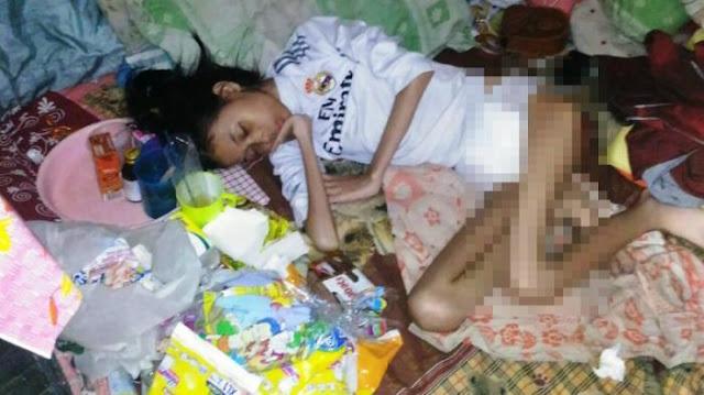 Kondisi Gadis ini Sangat Memprihatinkan , Ditolak di Beberapa Rumah Sakit