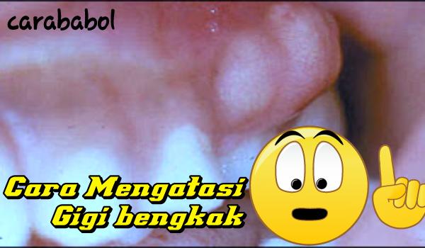 Penyebab Gigi Bengkak yang Kamu Tahu