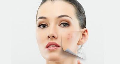 Crema eliminar cicatrices