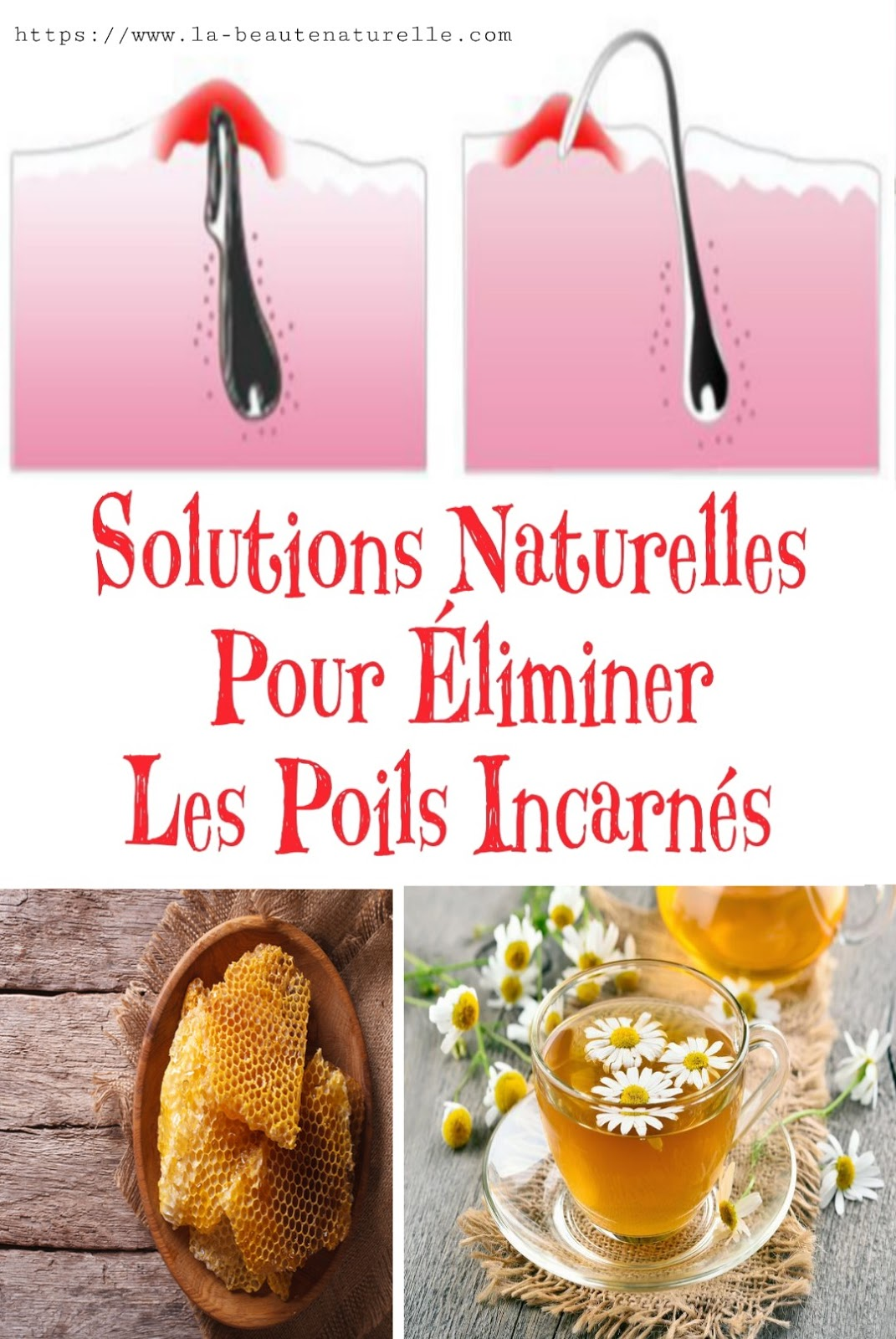 Solutions Naturelles Pour Éliminer Les Poils Incarnés