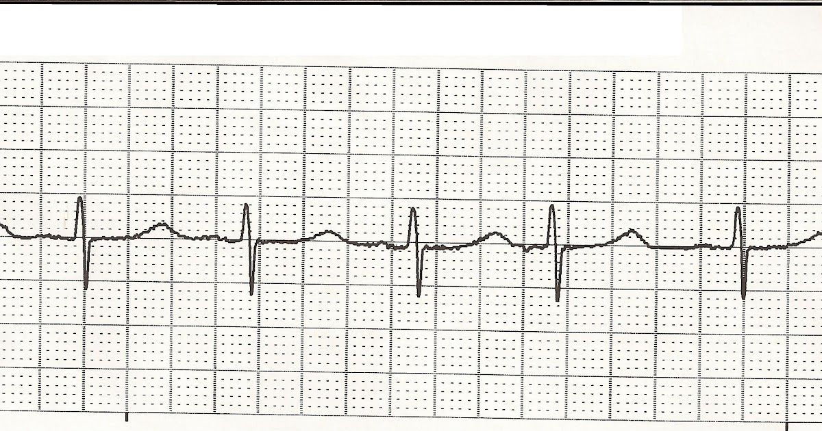 Float Nurse: EKG Rhythm Strips 32