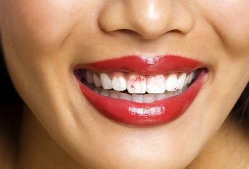 Agar Lipstik Tak Nempel di Gigi Lakukan 3 Hal Ini