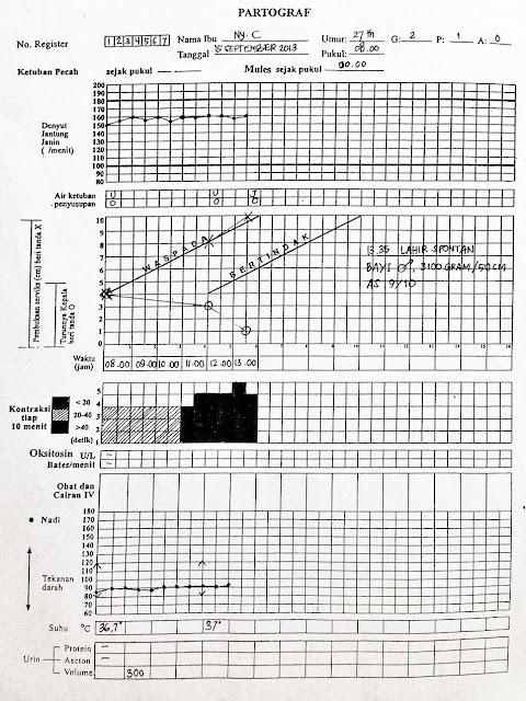 PARTOGRAF,contoh soal partograf dan jawabannya,contoh partograf yang sudah diisi,contoh kasus partograf persalinan normal dan jawabannya,soal partograf pdf,contoh partograf persalinan patologis,contoh kasus beserta partografnya,contoh kasus partograf 2016,contoh kasus persalinan normal,contoh cara pengisian partograf tahun 2010