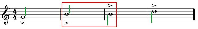 Figuras redondas con acento. La redonda situada en la línea central puede llevar el acento encima o debajo del pentagrama