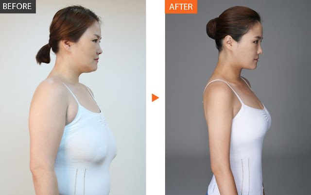 Is Breast Reduction and Weight Loss Safe?