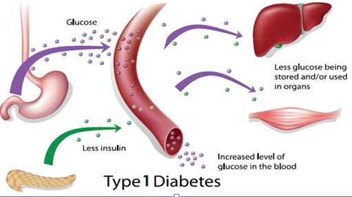 pyrinuron diabetes insípida