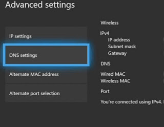 How to Speed Up Xbox One by Changing DNS