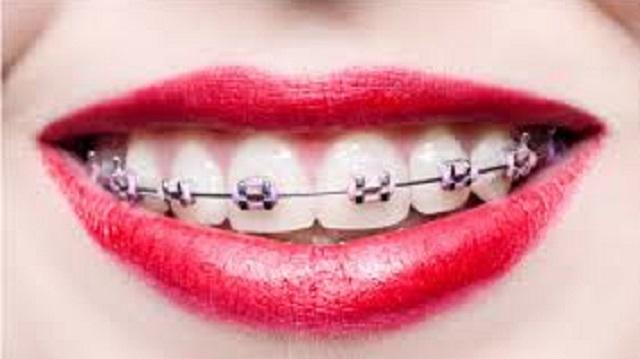 Dentição