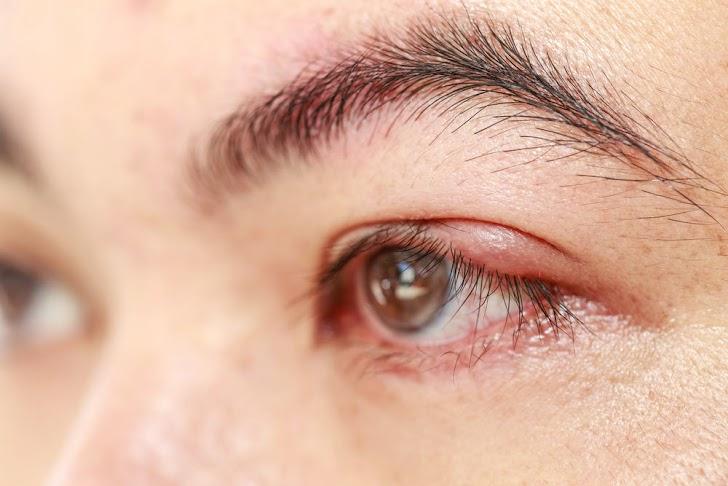 Tips Menangani Bintitan Pada Kelopak Mata Dengan Tepat